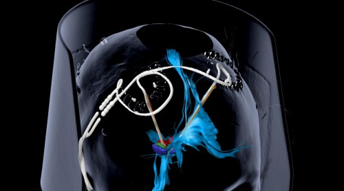 Deep Brain Stimulation Provides Sustained Relief for Severe Depression (IMAGE)