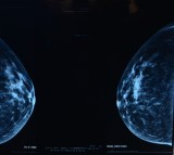 Mammograms and ultrasounds are equally effective.