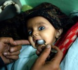 A blind eight-month-old baby suffering from menengitis is spoon fed milk by her mother in the Intensive Care Unit.