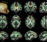 Autism Brain Activity