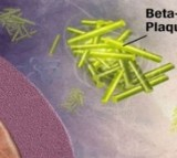 Amyloid Plaque