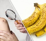 Bananas Skin Cancer