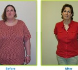 bariatric surgery, gastric bypass