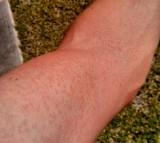 Rash on an arm due to a Zika virus
