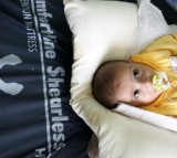 Iraqi Doctors See A Huge Growth In Children Born With Deformities