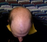 Cure for Baldness Soon