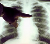 Ebola virus can also hide in the lungs.