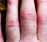 Rheumatoid arthritic finger