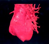 Giving The Heart A Second Chance? Anti-Cancer Drug Found To Help Regenerate Heart Tissues