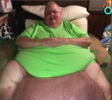 Man Was Told He Was 'Just Fat' - But It Was Actually A 130-pound Abdominal Tumor