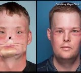 Face Transplant Exceeds Guy's Expectations Ten Years After Tragedy