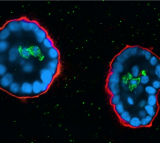breast cancer, cell
