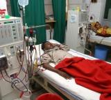 kidney, dialysis