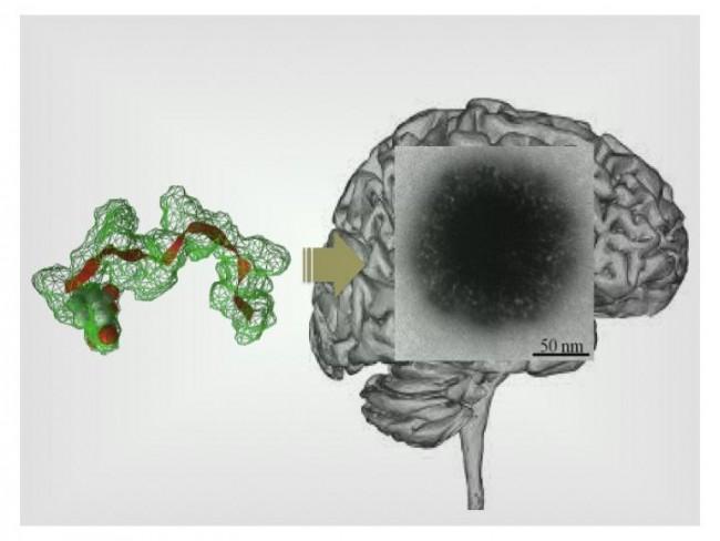 Targeting the Brain (IMAGE)