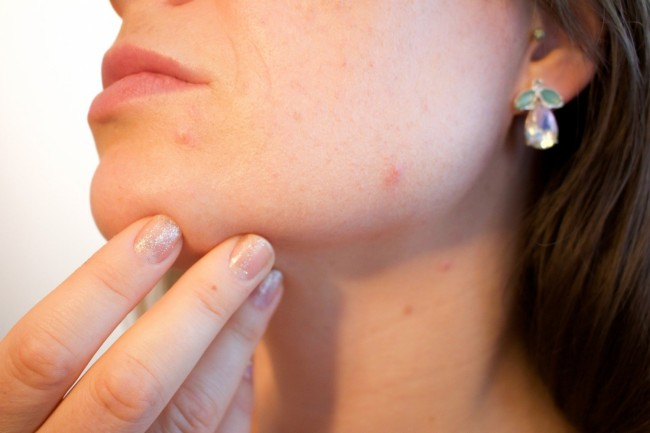 Of Breakouts and Anxiety - How Mental Health Affects Skin Conditions
