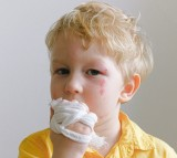 What Causes Injuries to Children During the Summer?