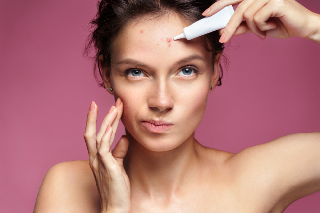 5 Tricks for Getting Rid of Your Acne at Home