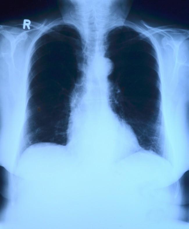 X Ray Fluoroscopy