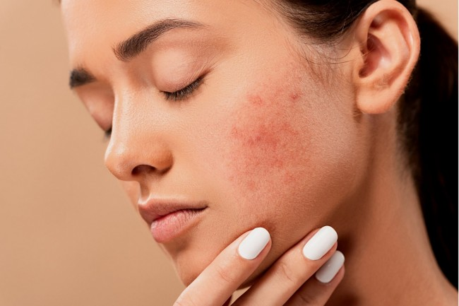 UAE Blog 9: Is Homeopathic Treatment Useful for Acne?