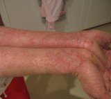 Eczema and Skin Allergies