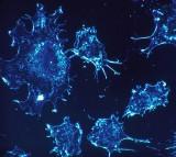 Cancer Cells, Immune System