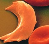 blood, sickle cell disease