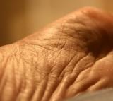 wrinkles, skin, ageing