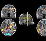 Stroke Brain Scans