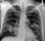 Lung Cancer, CT Scan