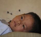 acupuncture, needle, child