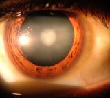 Cataracts, Eye