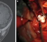 brain and teeth