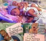 Twins, premature