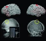 Brain, motor cortex