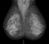 Breast, mammogram