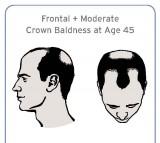 prostate cancer, baldness