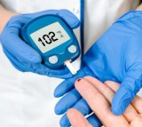 Three subtypes of type 2 diabetes, or adult onset diabetes have been identified.