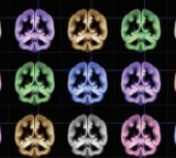 Brain scans can show the location of happiness.