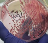 A lab technician holds a bacteria culture that shows a positive infection of enterohemorrhagic E. coli, also known as the EHEC bacteria, from a patient at the University Medical Center Hamburg-Eppendorf on June 2, 2011 in Hamburg, Germany.