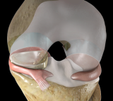 NUsurface Meniscus Implant