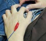 Electro-puncture